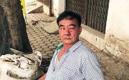 Công an điều tra vụ cựu chiến binh bị 3 đối tượng chặn xe, hành hung