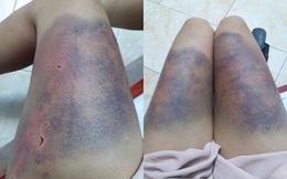 """Đêm kinh hoàng của cô gái ở Hà Nội: """"Anh ấy bắt tôi quỳ, đánh từ đêm 21 đến hết ngày 22"""""""