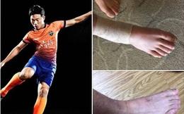 Gangwon FC tiết lộ điều đáng ngại về chấn thương của Xuân Trường