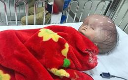 Những nguy cơ gặp phải khi trẻ bị bệnh não úng thủy