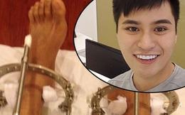Chàng trai phẫu thuật kéo chân từ 1m67 lên 1m76: Vẫn cõng được người yêu như thường!