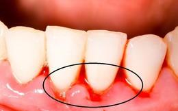 Đang đánh răng thấy chảy máu: Làm những điều sau để hết chảy máu chân răng