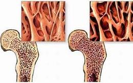 Biểu hiện của ung thư xương