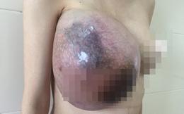 Vừa sinh con xong, người mẹ trẻ ở Hà Nội phải cắt bỏ một bên vú vì u Phyllode khổng lồ