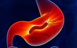 6 dấu hiệu cảnh báo ung thư dạ dày đã cận kề: Bức ảnh dưới đây giúp bạn nhận biết bệnh