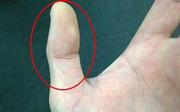 Chỉ cần nhìn 2 đốt ngón tay cũng biết con người bạn ra sao