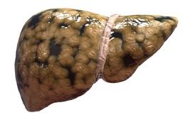 6 lời khuyên của chuyên gia dinh dưỡng Mỹ nên làm ngay để ngừa gan nhiễm mỡ