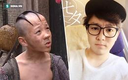 Cuộc sống khốn khó, bệnh tật của cậu bé Tam Mao một thời ai cũng yêu thích