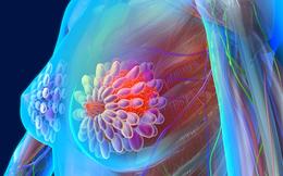 7 câu hỏi trắc nghiệm ung thư vú giúp bạn tự phát hiện bệnh sớm