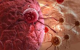 9 thay đổi nhỏ nên làm ngay hôm nay để phòng hầu hết các loại ung thư hay gặp