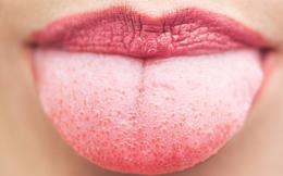 Những dấu hiệu cảnh báo ở lưỡi, đặc biệt lưu ý về nhiều bệnh ung thư
