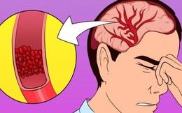 Bị nhức đầu, uể oải hay mất ngủ là dấu hiệu cơ thể bạn đang thiếu trầm trọng 2 vi chất sau
