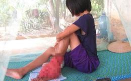 """Tâm sự buồn của thiếu nữ nhà nghèo có chân bị """"nở hoa"""" chi chít"""
