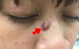 BS Bệnh viện 108: Cẩn thận với những nốt ruồi, điều trị sai lầm dễ ung thư hoá
