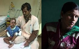 Cậu bé 2 tuổi bị kẻ theo đuổi mẹ tạt axit, hỏng nửa khuôn mặt