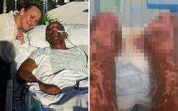 Vì vết xước chưa đến 1cm trên tay, người đàn ông phải cắt bỏ hai chân, chạy thận cả đời