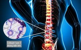 Nếu biết những lời khuyên này sớm, bạn sẽ bớt lo phải chữa bệnh đau lưng sau này