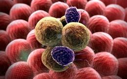 Chuyên gia chỉ rõ: 3 cách ăn uống chắc chắn giúp hạn chế ung thư