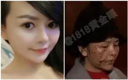 Đi thẩm mỹ về và trở nên xinh đẹp, cô gái bị bạn thân 5 năm tấn công hủy hoại gương mặt vì ghen tị
