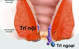 Bài thuốc chữa bệnh trĩ của người Ấn Độ: Chỉ cần dùng đậu bắp và dầu ô liu trong 2 tháng