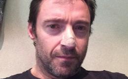 """""""Người sói"""" Hugh Jackman và thông điệp gửi đến người hâm mộ trên Instagram sau khi bị ung thư da"""