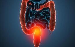 Đừng để đường ruột bẩn và gây ra nhiều bệnh nguy hiểm: Hãy uống 4 loại nước thải độc sau