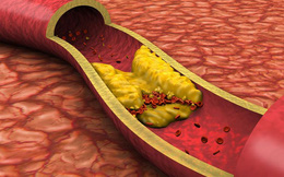 Nếu có tỉ lệ chất này trong cơ thể cao, bạn có nguy cơ cao bị đột quỵ, nhồi máu cơ tim