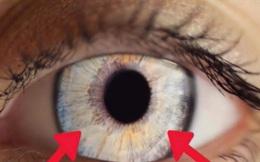 Dấu hiệu bất thường ở mống mắt cảnh báo cơ thể có vấn đề