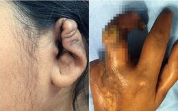 Căn bệnh lạ khiến chân tay hoại tử, tai và mũi biến dạng