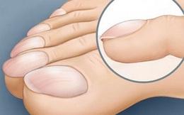 Bàn chân gặp 10 biểu hiện này chớ coi thường, bệnh trở nặng lúc nào không hay!