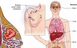 Ung thư vú không còn sợ di căn lên não, theo nghiên cứu từ ĐH California