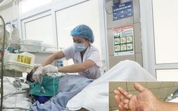 Rắn độc cắn: Sơ cứu đúng, giảm tử vong