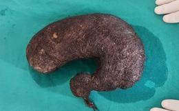 Mắc hội chứng ăn tóc Rapunzel, một nữ sinh tử vong