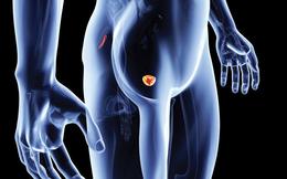 [Đọc nhanh] 8 dấu hiệu cảnh báo ung thư tuyến tiền liệt, mọi quý ông đều nên đề phòng