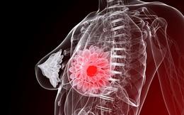 Phát hiện sớm ung thư vú - bí quyết để sống sót: Những bước phòng ngừa ai cũng cần biết