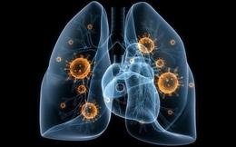 [Đọc nhanh] Cách loại bỏ độc tố ra khỏi phổi: Muốn ngừa ung thư, phải bắt đầu từ việc nhỏ