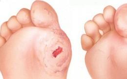 7 cách chăm sóc vết thương chân ở người bệnh tiểu đường