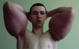 Chàng trai tự tiêm dầu vào người để có bắp tay khổng lồ như lực sĩ