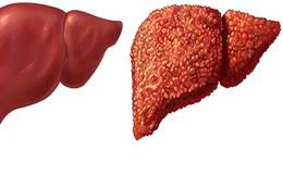 Đông y có 4 dấu hiệu cảnh báo sớm nhất bệnh xơ gan: Hãy tự nhận biết để khám chữa kịp thời