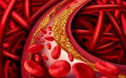 """Mỡ máu cao gây ra 3 loại bệnh nguy hiểm, """"hiểm họa"""" bắt đầu từ 4 thói quen nhiều người mắc"""