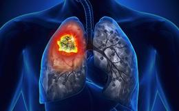 Phụ nữ dù không hút thuốc vẫn có nguy cơ bị ung thư phổi: Đây là triệu chứng cần lưu tâm