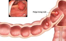 Biến chứng của bệnh polyp đại tràng