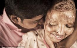 Mặt biến dạng vì axit, cô gái vẫn khiến một anh chàng mê mệt, tình nguyện chăm sóc cả đời