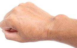 Triệu chứng tê bại ở tay không hẳn do thiếu canxi mà có thể xuất phát từ 10 nguyên nhân không ngờ