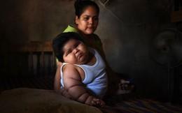 Con 10 tháng nặng 28kg, mẹ đinh ninh con hấp thu sữa mẹ tốt mà không ngờ có thể mắc bệnh đặc biệt