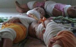 Hình ảnh 3 đứa trẻ bị trói chân tay, bịt miệng tại trường mầm non gây phẫn nộ