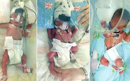 Người phụ nữ sinh hai lần chỉ trong 7 ngày