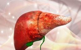 12 dấu hiệu cảnh báo gan bị tổn thương