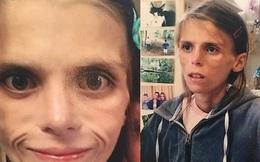 Ám ảnh với cân nặng của mình, cô bé 15 tuổi lao đầu vào tàu hỏa tự tử