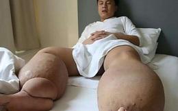 Người đàn ông có đôi chân nặng 150kg chỉ vì một vết muỗi đốt